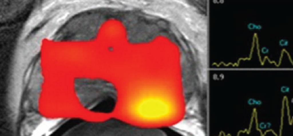 MULTIPARAMETRICA-prostata