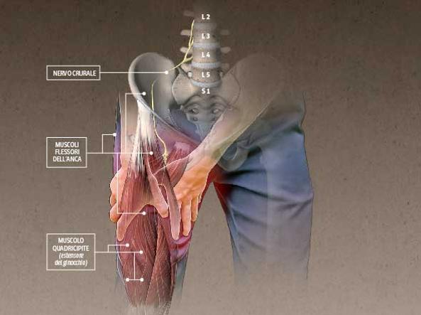 dolore coscia nervo crucale