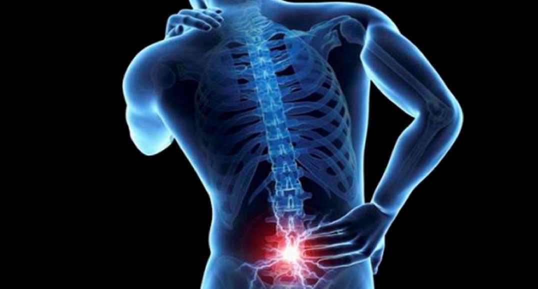 Mal di schiena: dolore, esercizi e prevenzione