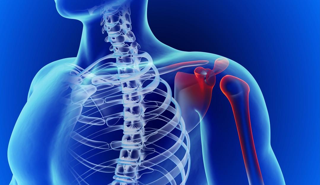 Dolore alla spalla. Disturbi più comuni e rimedi