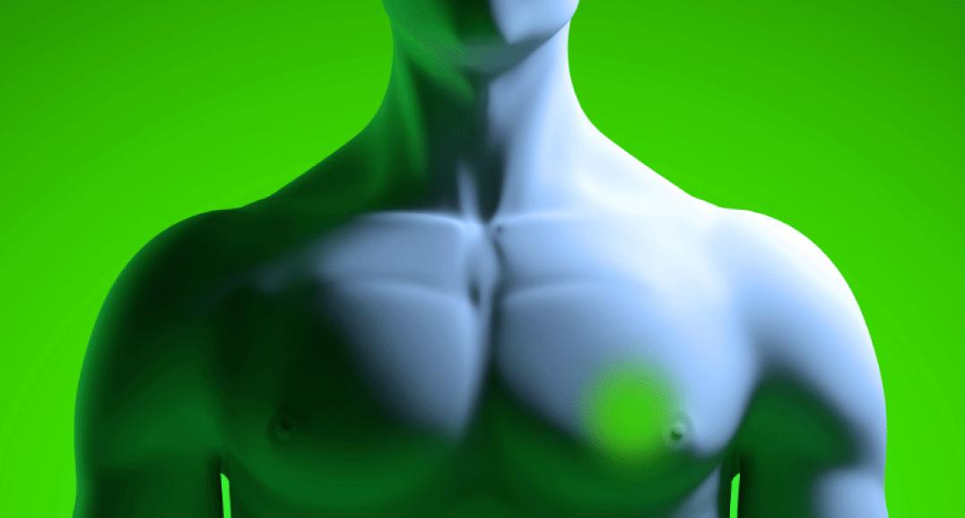 cancro-al-seno-uomo-igea-s.antimo