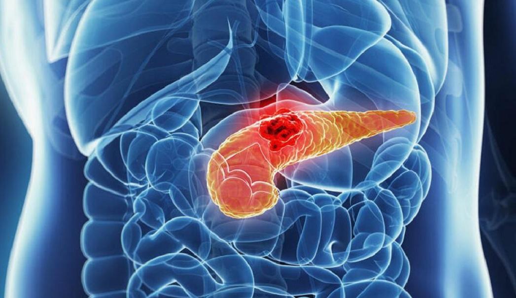 Perché è difficile trattare il cancro al pancreas