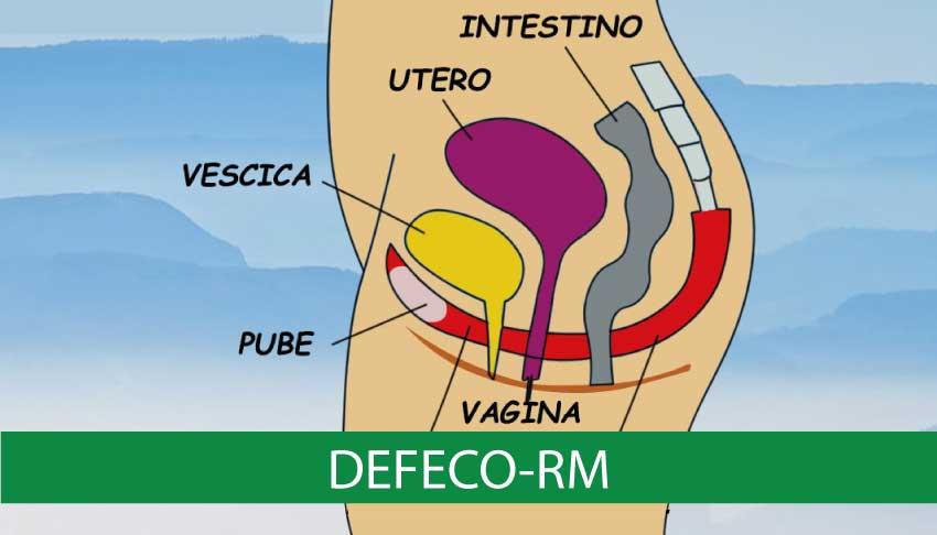 DefecoRM-igea-s.antimo-napoli