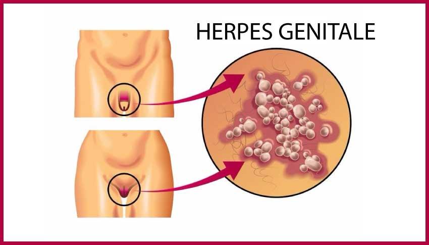 herpes genitale igea s.antimo