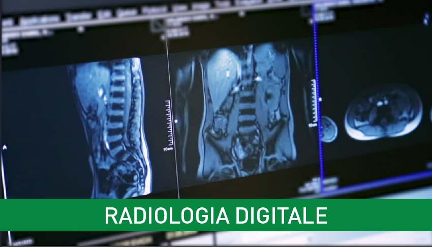 resonancia magnética multiparamétrica de próstata avellino italia