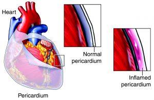 tamponamento-cardiaco
